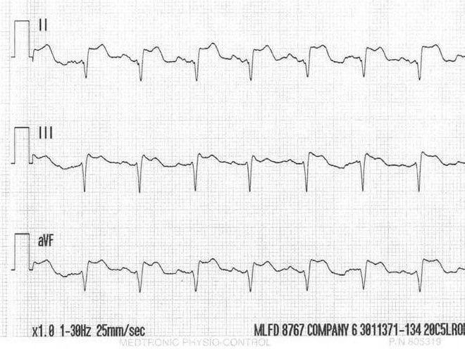 image about Printable Ekg Strips titled Can by yourself diagnose STEMI upon a rhythm strip? The Prehospital Drive